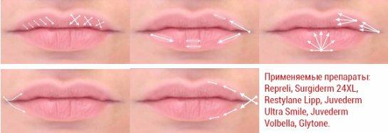 Коррекция и увеличение губ - всё, что надо знать.