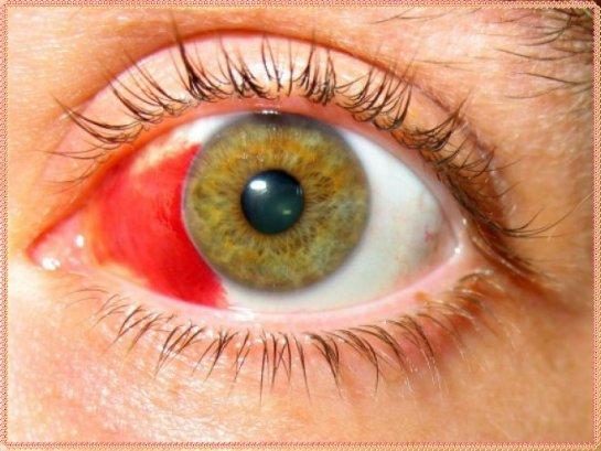 Кровоизлияние в глаз: причины и их лечение