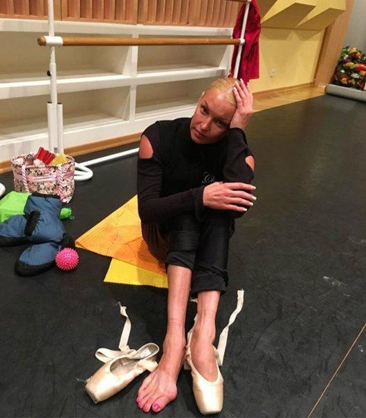 Волочкова шокировала изуродованными ногами из-за балета во время педикюра