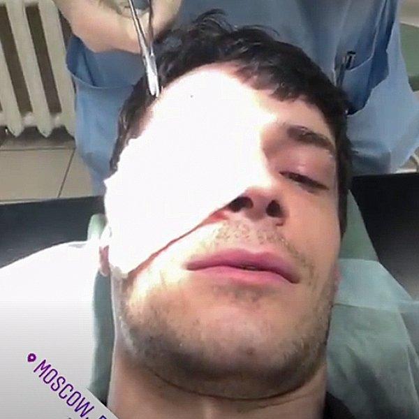 Максим Медведев получил серьёзную травму на репетиции