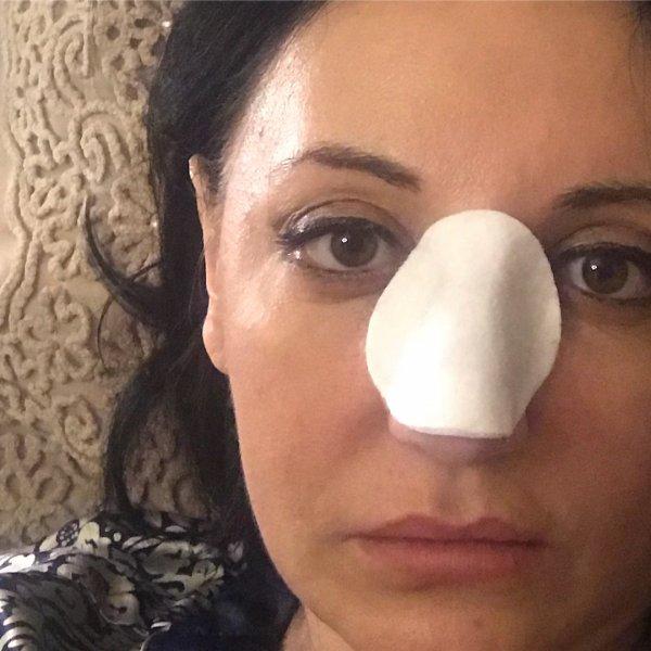 Звезде «Битвы экстрасенсов» изуродовали лицо пластической операцией