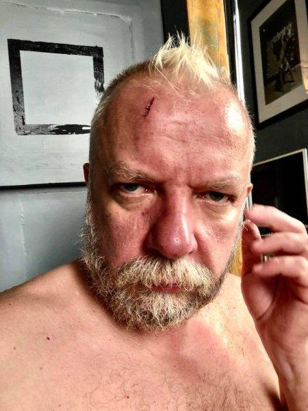 «Более чем больно»: Участника «Битвы экстрасенсов» Сергея Пахомова избили железной палкой