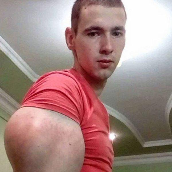 «Как же это мерзко!»: Лицо Кирилла «Руки-базуки» покрылось огромными прыщами