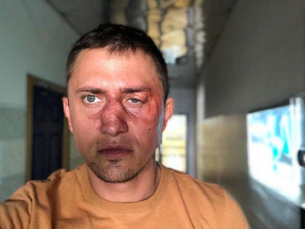 Павел Прилучный испугал фанатов новым фото с опухшим лицом