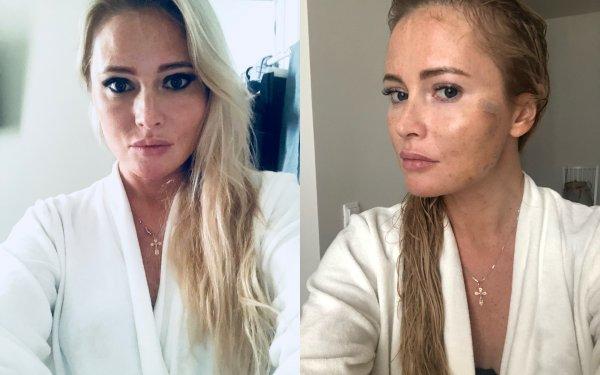 «Запомните меня такой»: Дана Борисова спасает внешность очередной подтяжкой лица