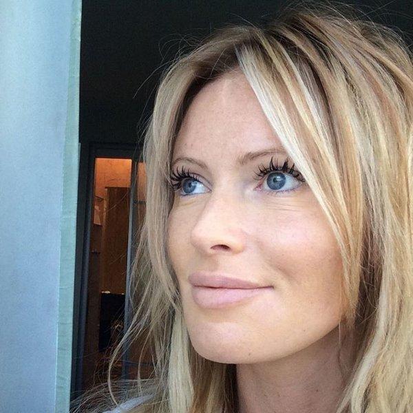 Дана Борисова продемонстрировала ужасные синяки на лице