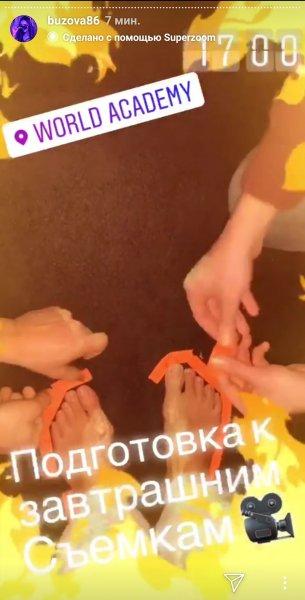 Операции не избежать: Бузова показала разрастающиеся шишки на ногах