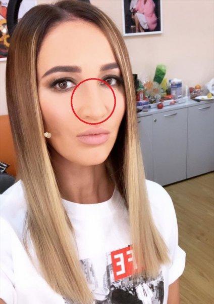 «Мопс тупорылый»: Бузова перегнула с фотошопом и вдавила себе в лицо нос
