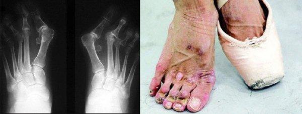 «Терпит адскую боль»: Волочкова изнуряет изуродованные балетом ноги высокими каблуками