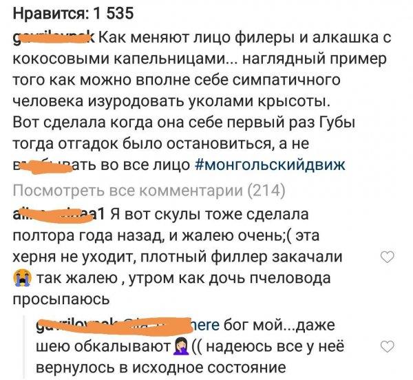 «Филлеры и алкашка»: В сети обсудили, как изменилось лицо Ольги Бузовой за 3 года