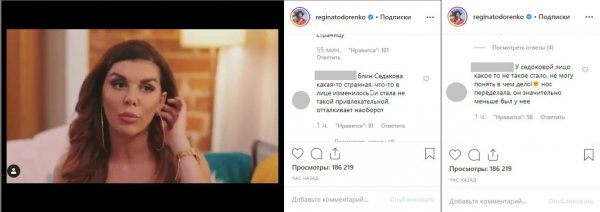 «Изуродовалась до неузнаваемости»: Фанаты ужаснулись настоящему лицу Седоковой после пластики