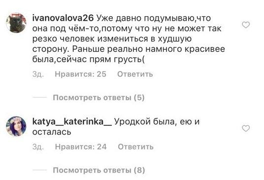 «Последние мозги высохли». Анастасия Ивлеева плоским юмором обидела детей-инвалидов