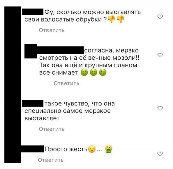 «Волосатые обрубки»: Волочкова вызвала отвращение у фанатов