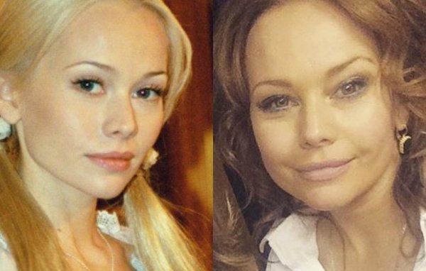 «Налет» искусственности: Елена Корикова испортила внешность ради мужчин