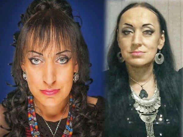 Болезнь прогрессирует? Аида Грифаль из «Битвы экстрасенсов» начала терять волосы