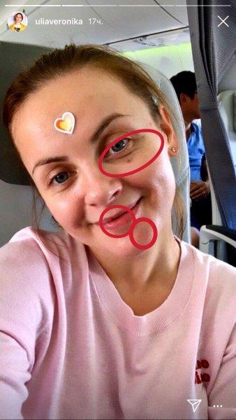 Кровоподтек и синие отметины: Проскурякова «засветила» последствия развода с Николаевым