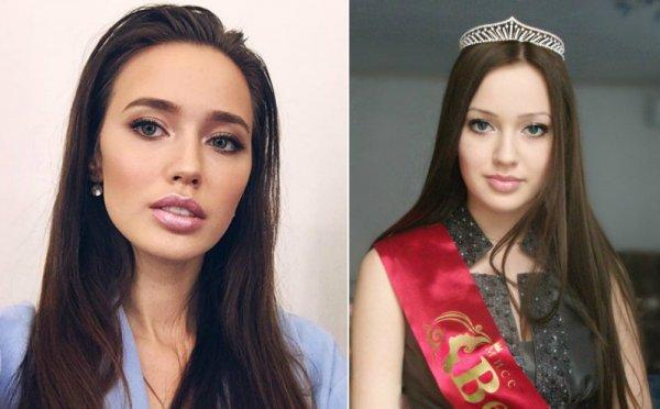 Вечно молодая «рожалка»: Тарасов заставил Костенко сделать лицо из «пластмассы»