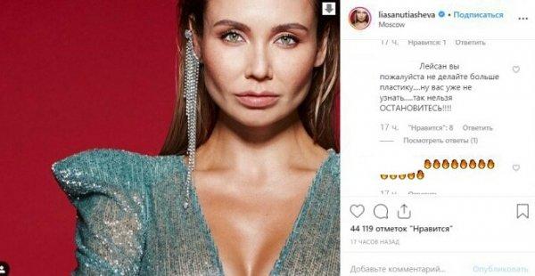 Ляйсан, остановись! Фанаты перестали узнавать Утяшеву после череды «пластик»