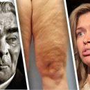 У Брежневой как у Брежнева: Вера ужаснула сеть «пережёванными» коленями