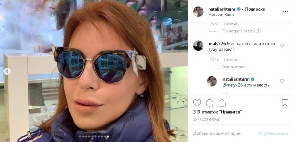 Наталья Штурм была избита - любовник-альфонс изувечил?