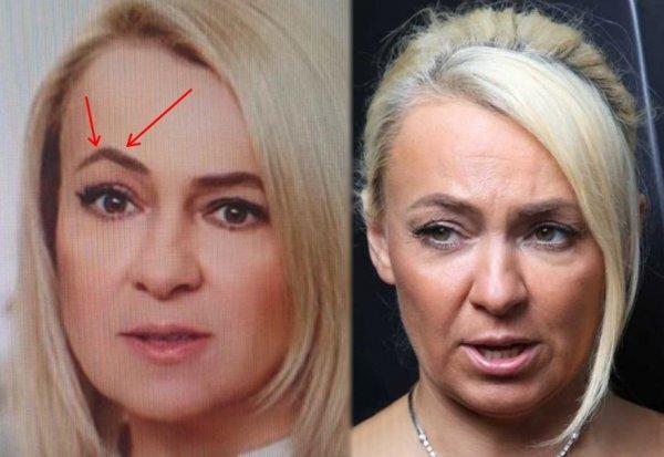 Новая Успенская: Рудковская «перекосилась» от подтяжки лица?