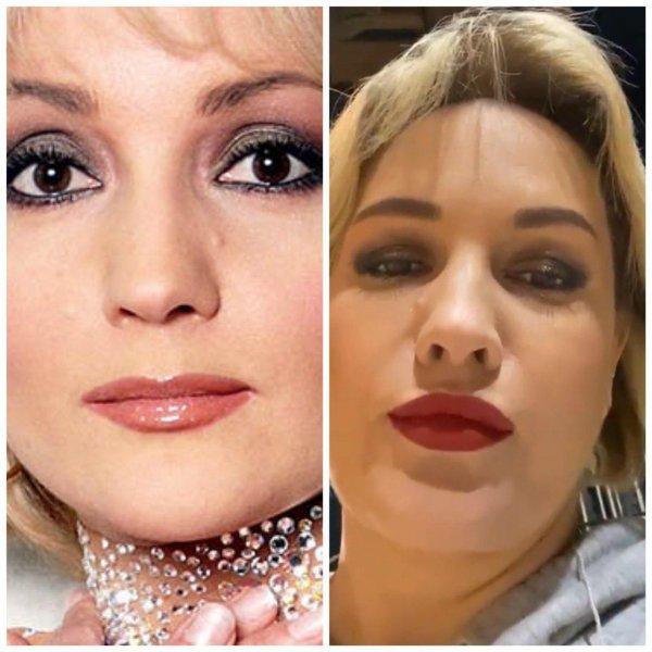 А губы все растут: Буланова ошарашила сеть последствиями «уколов красоты»?