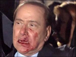 Премьер-министру Италии Сильвио Берлускони выбили зубы и сломали нос