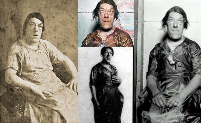 Мери Энн Вебстер - cамая страшная женщина в мире